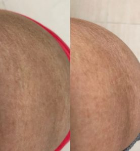xczema pro_before & after